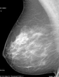 Scattered-Density Breast Tissue