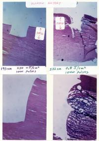 Micrographs of Human Aorta