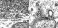 Exocytosis and Endocytosis