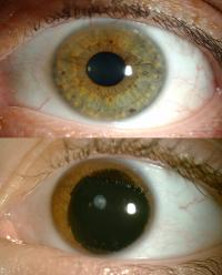 Aniridic Eye