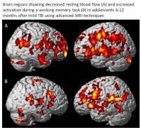 MRI Scans in Adolescent Following Mild Traumatic Brain Injury