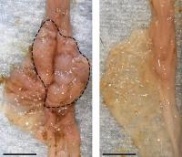 Intestinal Tumors in Mice