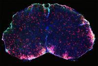 Brain Multiple Sclerosis
