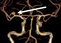 A Brain Aneurysm