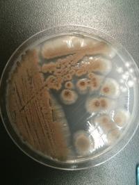 Aspergillus Versicolor