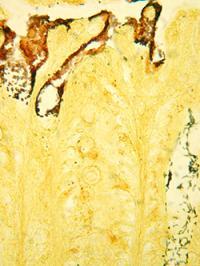 <I>Citrobacter rodentium</I>