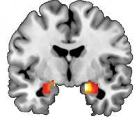 Amygdala Activation