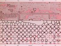 Microfluidic Model