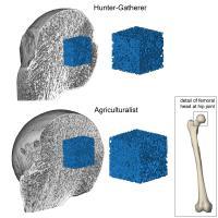 Bone Mass Comparison