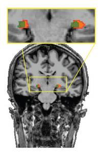 MRI of Human LGN