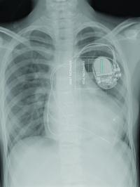 Fetal vs. Adult Pacemaker
