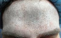 Forehead Prep