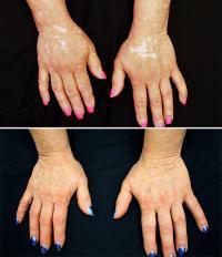 For Vitiligo Patient, Arthritis Drug Restores Skin Color