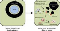 Schwann Cell Myelinophagy