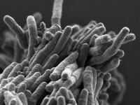 <I>Mycobacterium tuberculosis</I>