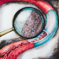 Artist's Representation of the Improved Vascular Graft