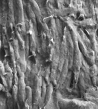Melanosomes under the Microscope