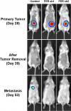 Supressing FER Reduces Metastasis