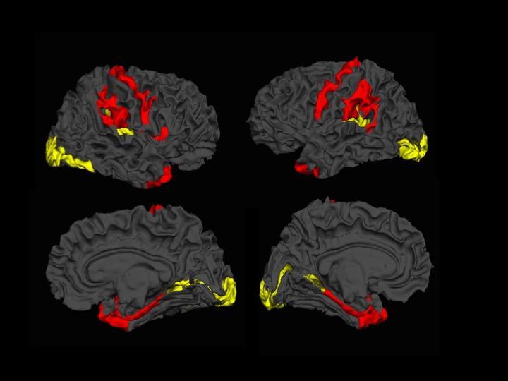 MRI Scans Show Brains OF Schizophrenia Patients Attempt To Self-Repair