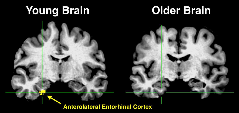 Young Brain vs. Older Brain [image] | EurekAlert! Science News