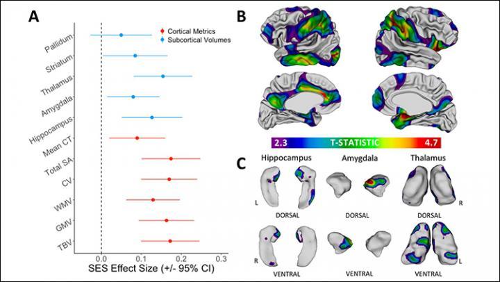 Socioeconomic status and the developing brain | EurekAlert! Science News