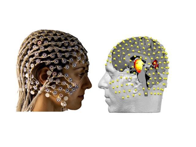 A gentle method for unlocking the mysteries of the deep brain | EurekAlert! Science News