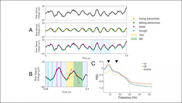 Noninvasive electrophysiological biomarker for Parkinson's disease | EurekAlert! Science News