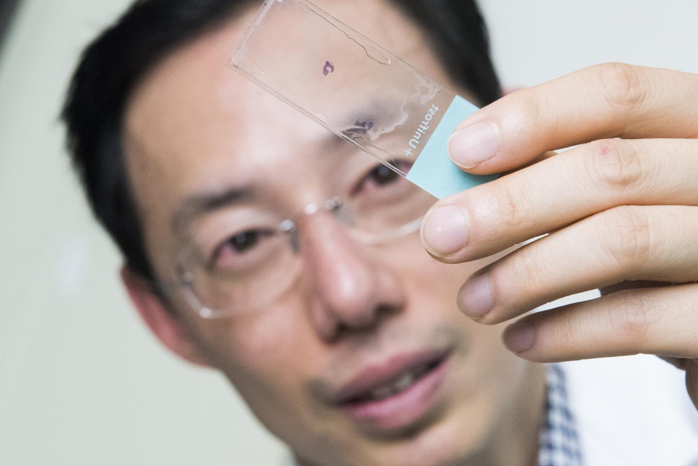 Experimental fertility preservation provides hope for young men | EurekAlert! Science News