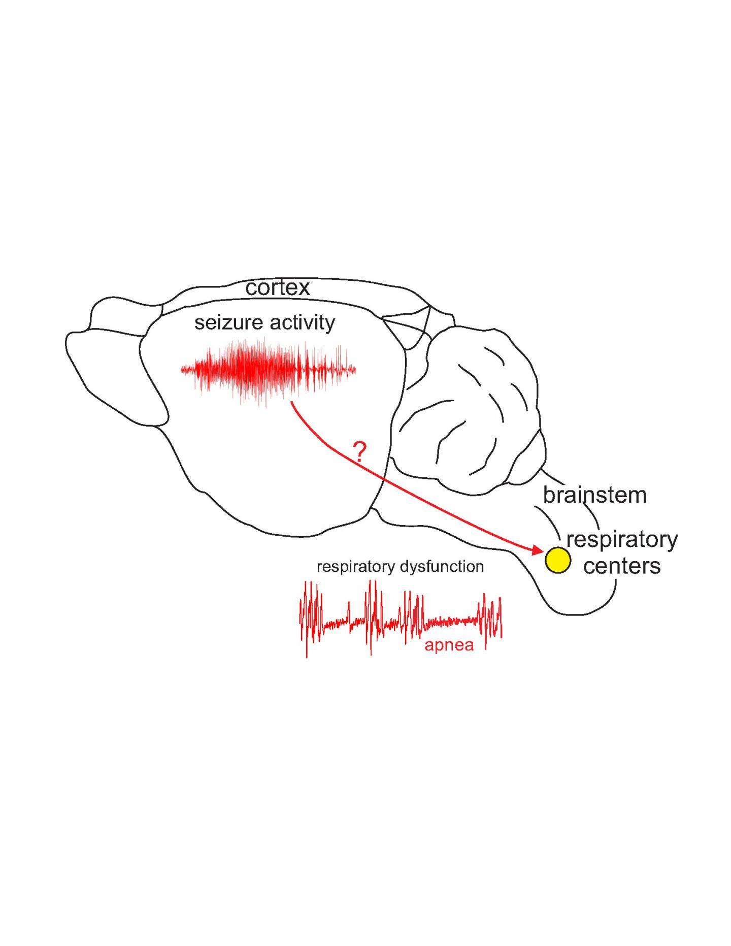 Epilepsy and sudden death linked to bad gene | EurekAlert! Science News