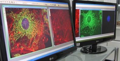Genetically modified virus combats prostate cancer | EurekAlert! Science News
