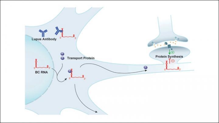 Lupus antibody target identified | EurekAlert! Science News