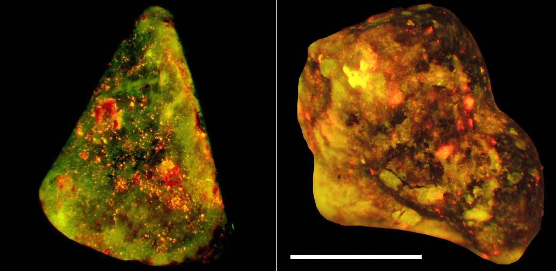 Immune cells drive gallstone formation | EurekAlert! Science News