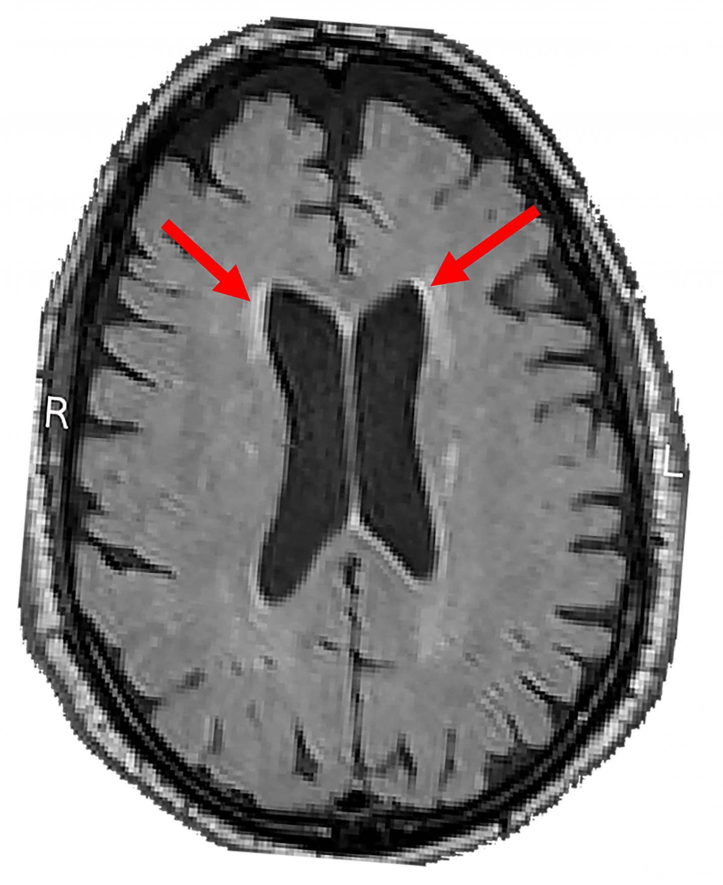 Intensive blood pressure control may slow age-related brain damage | EurekAlert! Science News