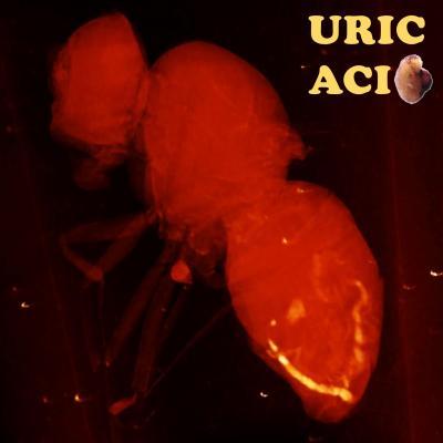 Uric acid pathologies shorten fly lifespan, highlighting need for screening in humans | EurekAlert! Science News