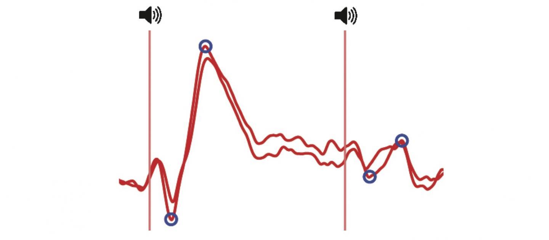 How our brain filters sounds | EurekAlert! Science News