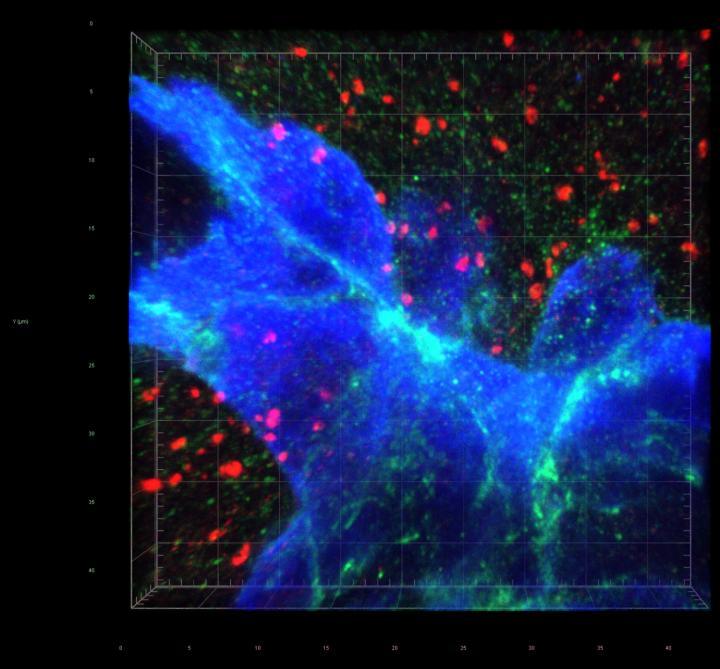 The path of breast-to-brain cancer metastasis | EurekAlert! Science News