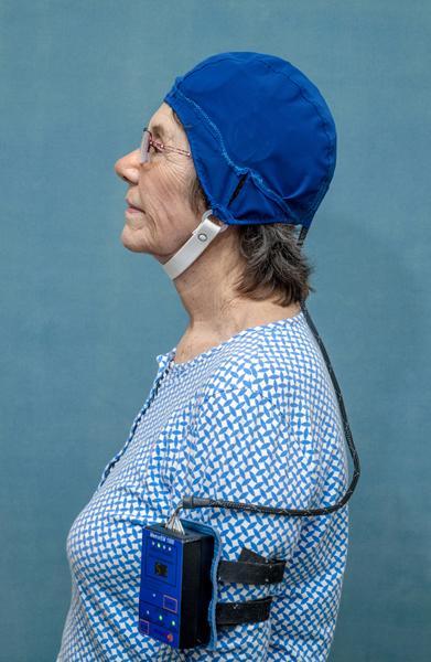 Alzheimer's memory loss reversed by new head device using electromagnetic waves | EurekAlert! Science News