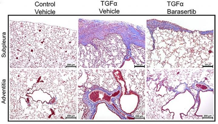 Pulmonary fibrosis treatment shows proof of principle