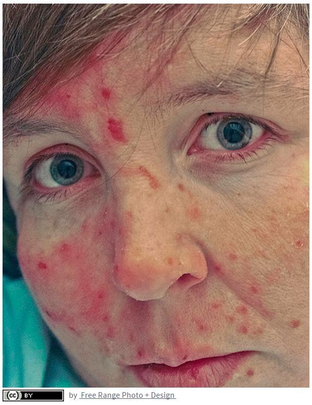 Is skin-picking een vorm van automutilatie? | Dwang.eu